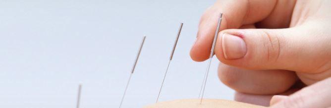 aguja acupuntura