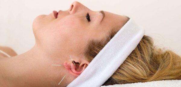 Auriculoterapia realizada con agujas de acupuntura