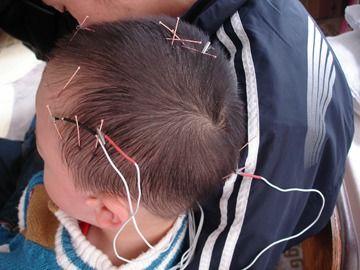 craneo acupuntura electro estimulacion