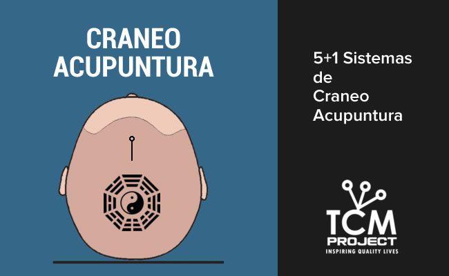 5+1 Sistemas de Craneo Acupuntura: Tou Zhen 头针