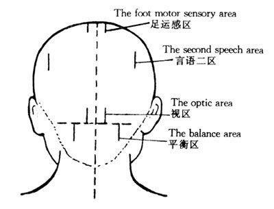 jiao shun fa acupuntura 4
